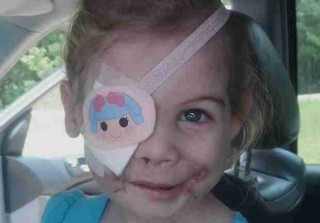 """Toddler Scarred By Dog Attack Asked to Leave KFC Because Her Face """"Disrupted Customers"""" (UPDATE)"""