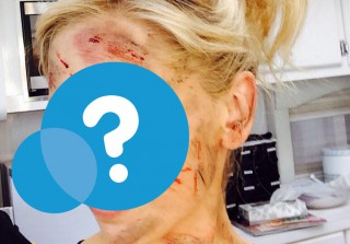 Which Famous Actress Got (Fake) Bloodied on Set?