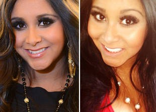 Did Snooki Get Her Teeth Fixed? - Exclusive